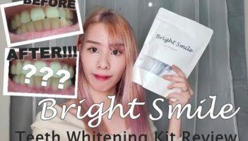 Smile Teeth Whitening Kit Review